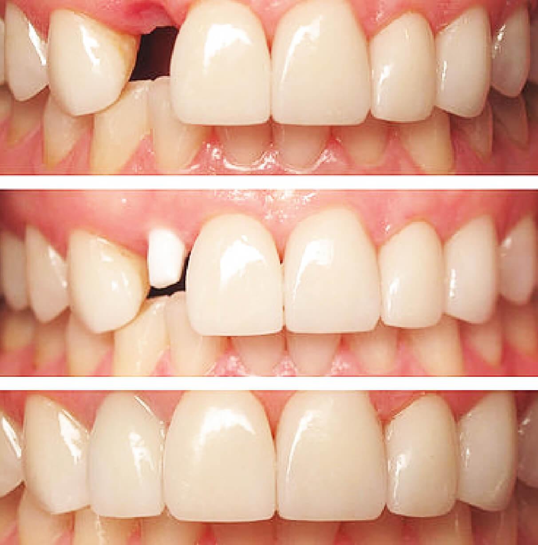 implantologia-022-02