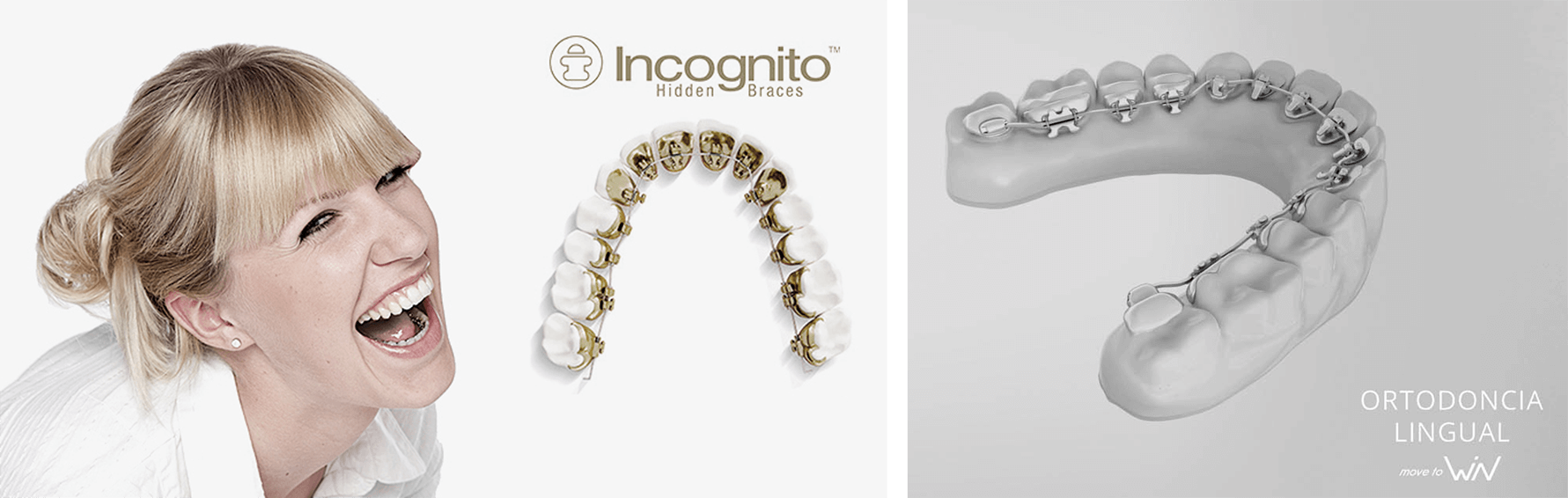 ortodoncia lingual_imagen