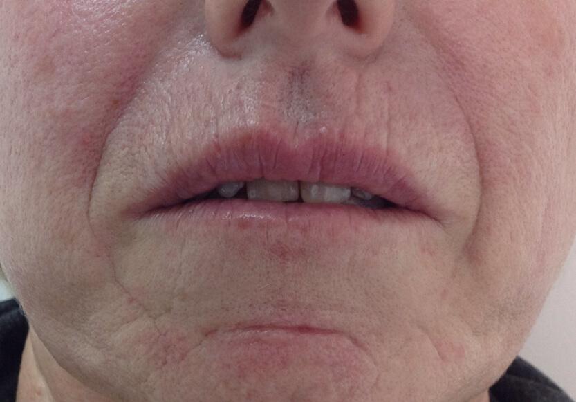 2-rejuvenecimiento-facial-antes-de-frente_2