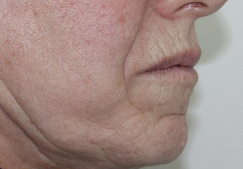 3-rejuvenecimiento-facial-antes-de-perfil_1