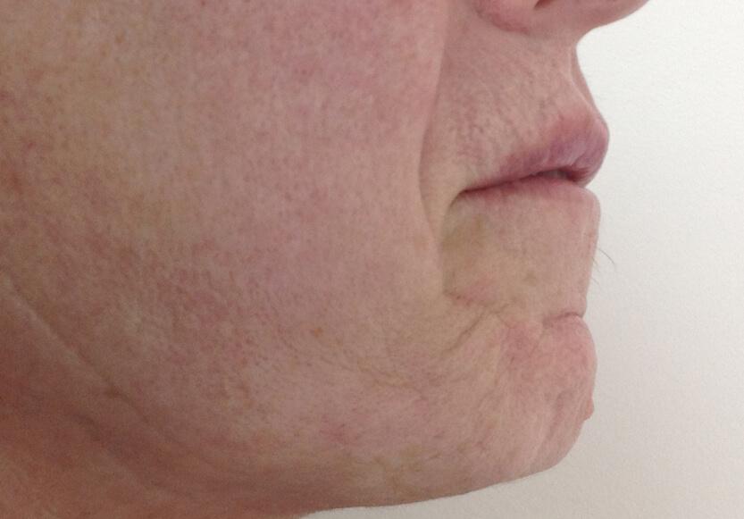 4-rejuvenecimiento-facial-despues-de-perfil_2