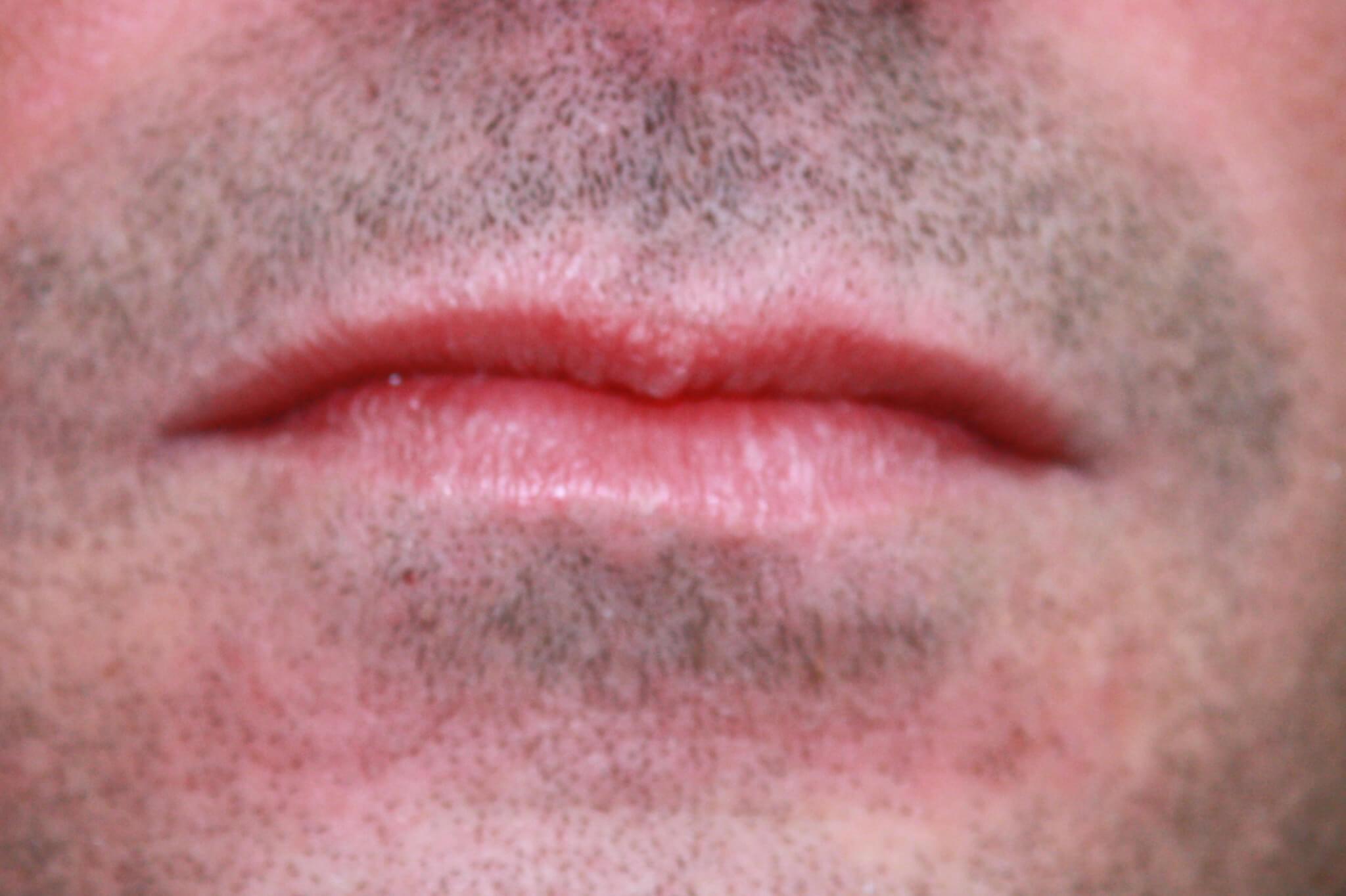 antes-de-aumento-de-labios