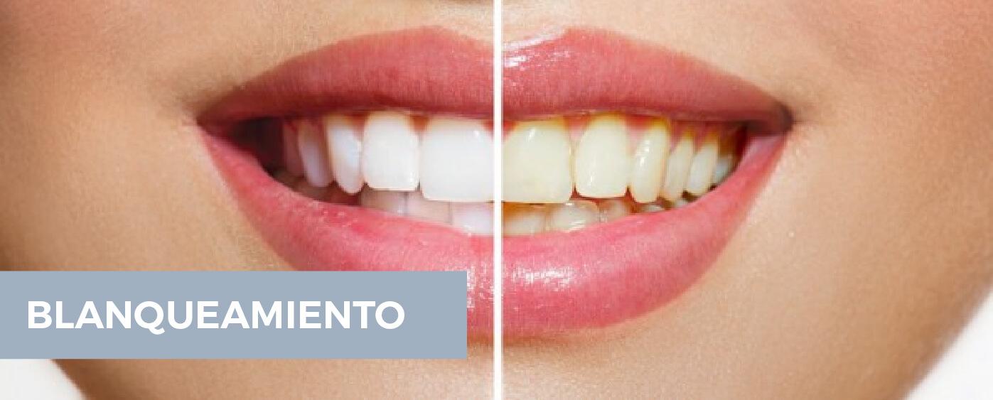 estetica-dental-39