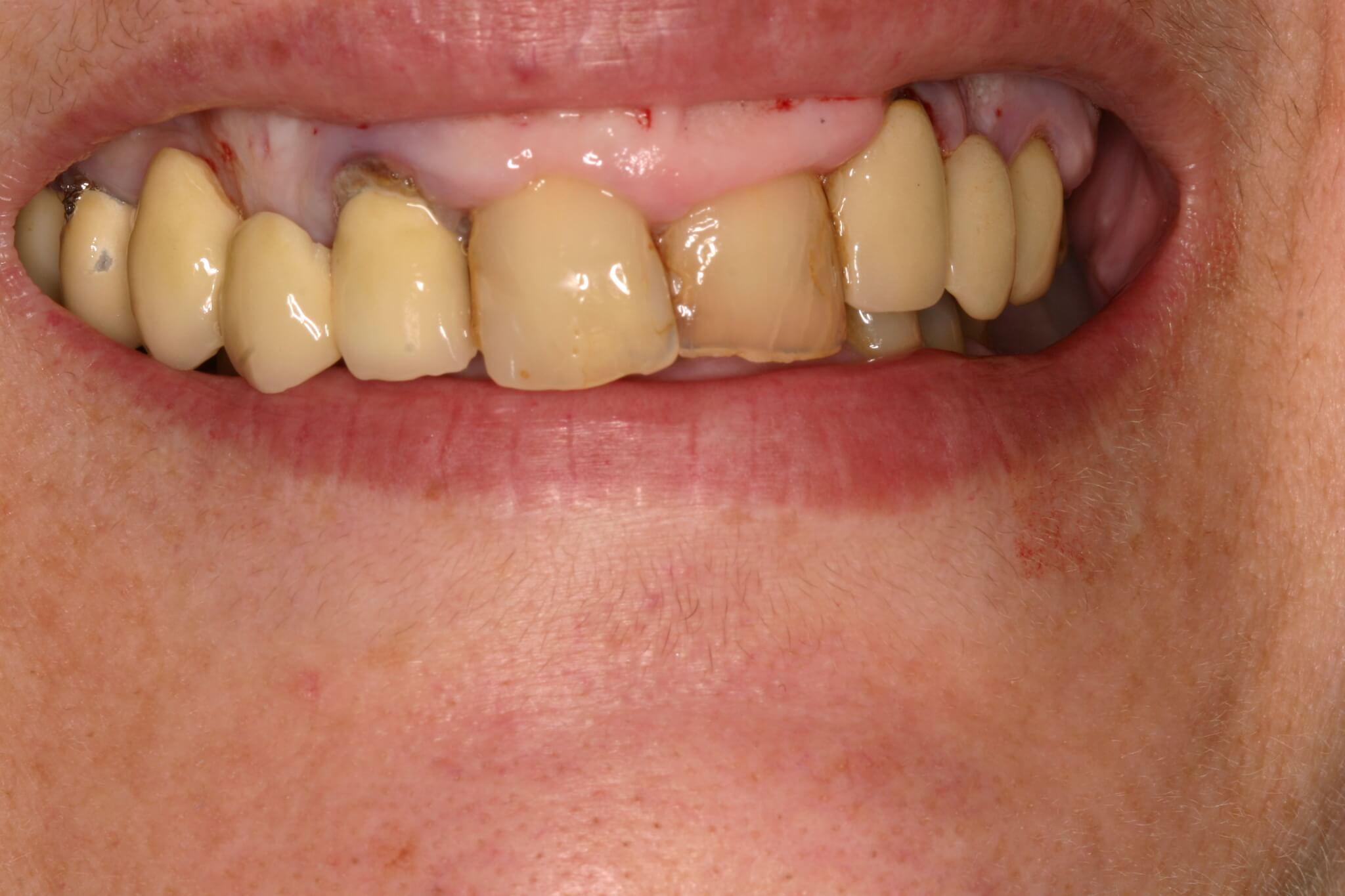 modificacion-sonrisa-1