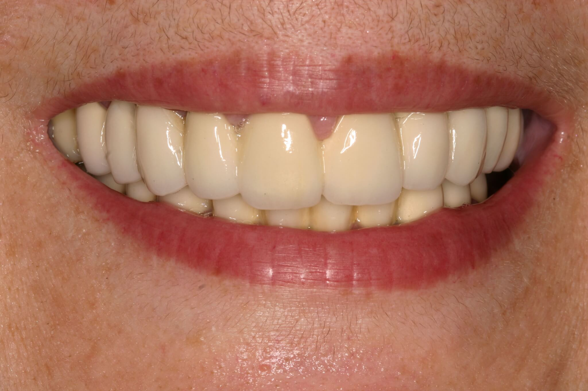 modificacion-sonrisa-2