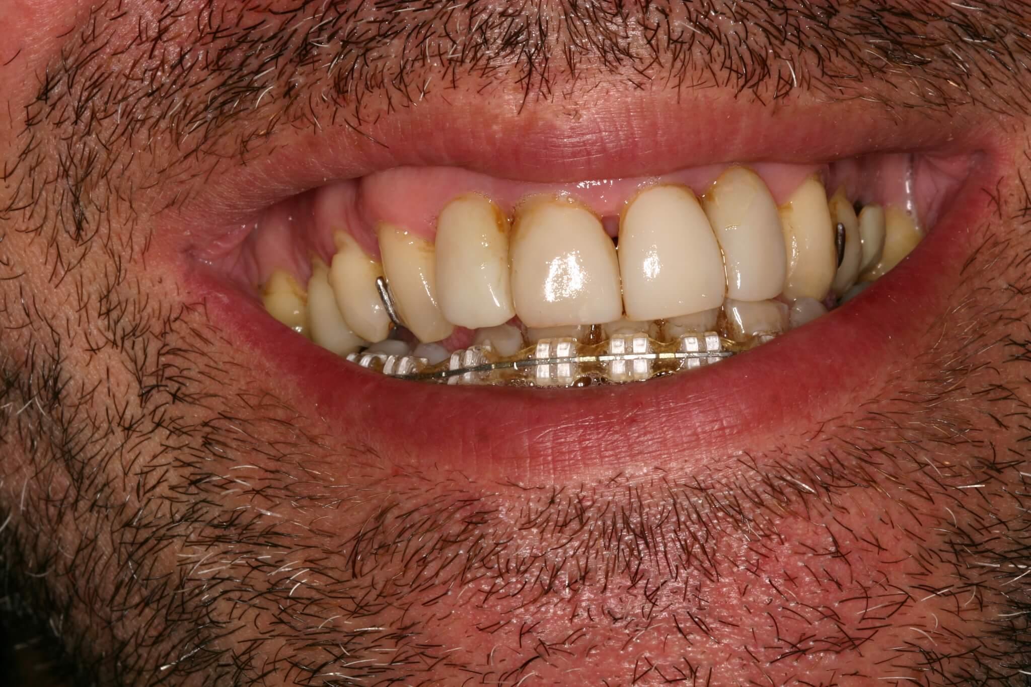 modificacion-sonrisa-3