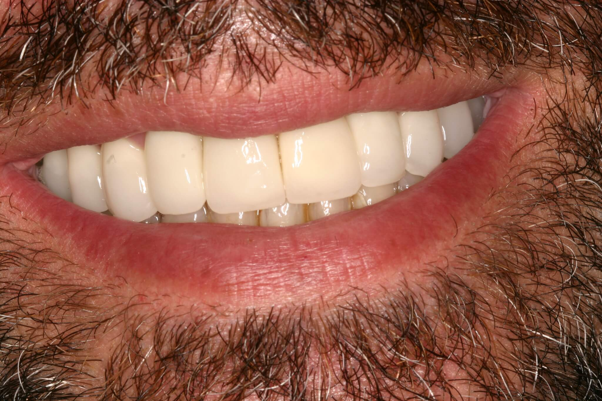 modificacion-sonrisa-4