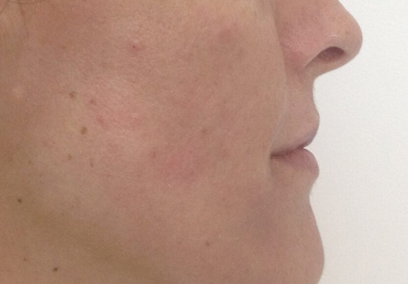 perfilado-de-labios-antes-1