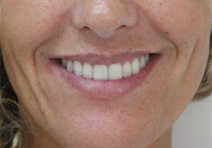 perfilado-de-labios-antes-2