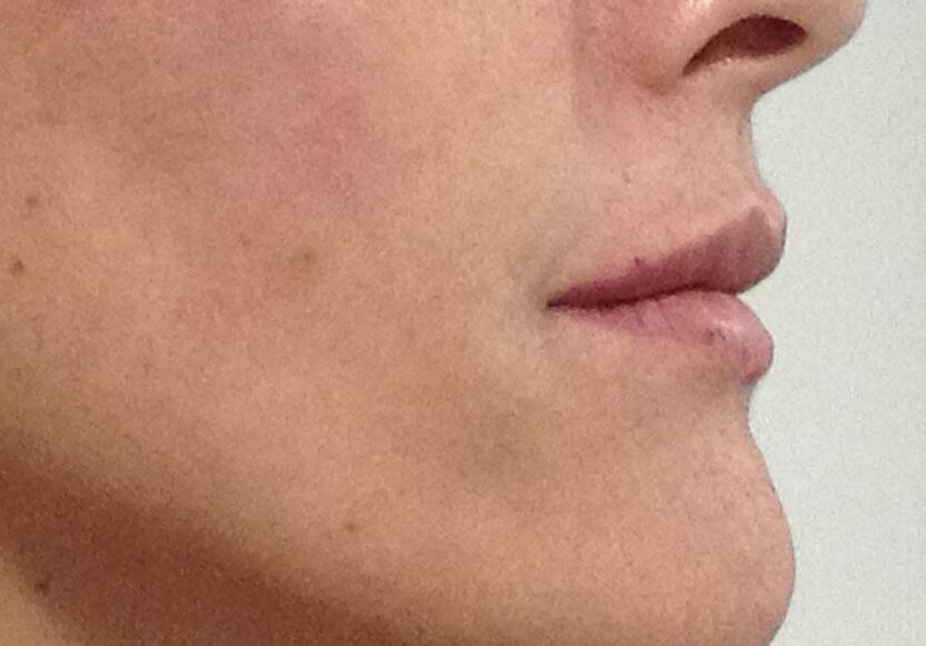 perfilado-de-labios-despues-1