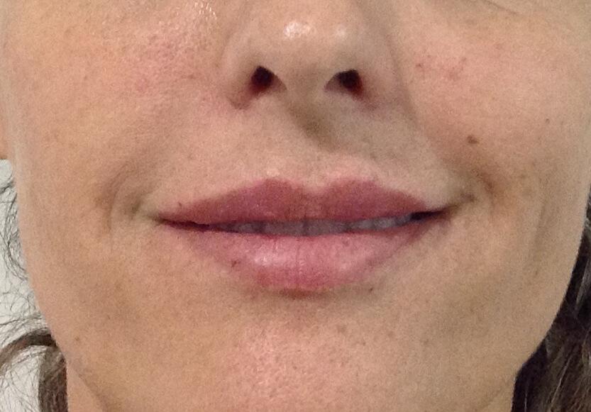 perfilado-de-labios-despues-2