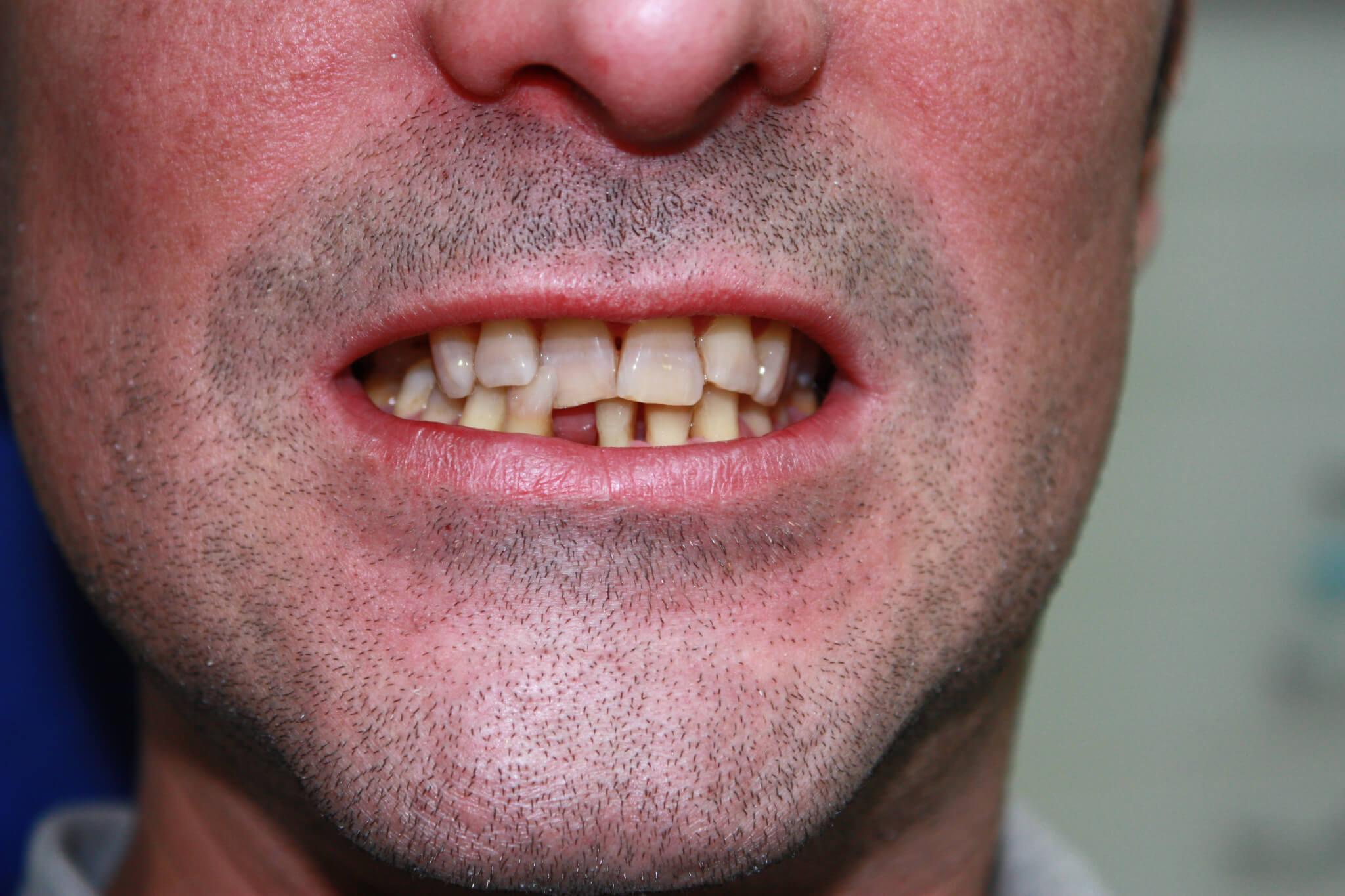 modificacion-de-la-sonrisa-1-antes