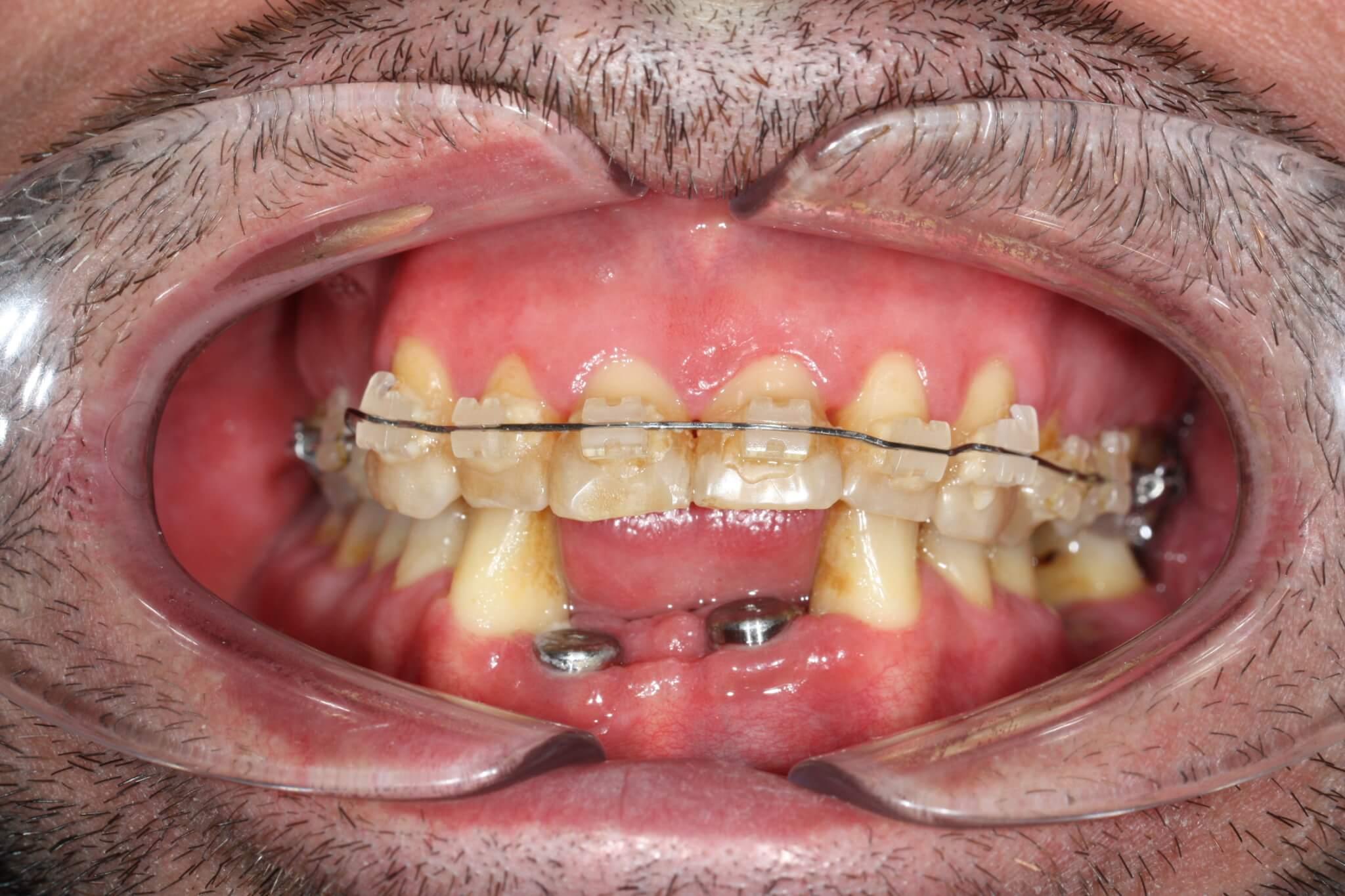 modificacion-de-la-sonrisa-con-brackets-de-porcelana-e-implantes-2