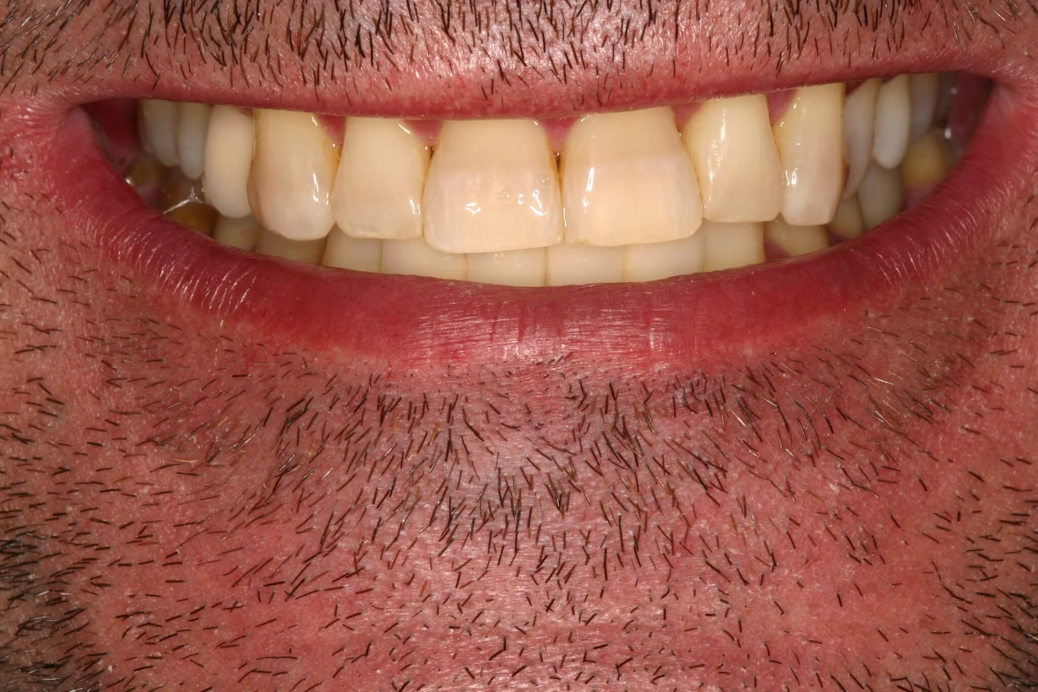 modificacion-de-la-sonrisa-con-protesis-sobre-implantes-4