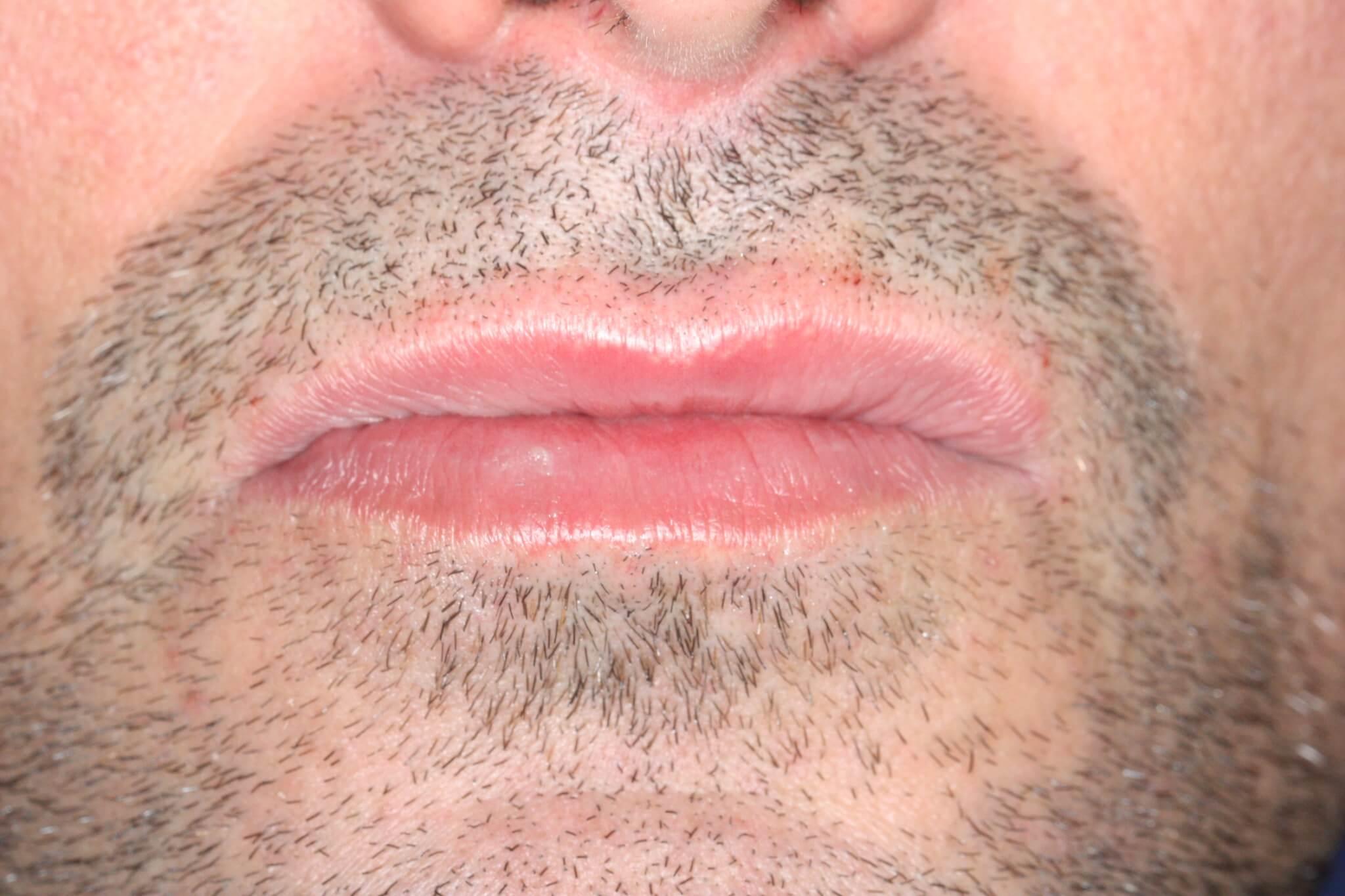 modificacion-de-la-sonrisa-perfilado-de-labios-despues-6