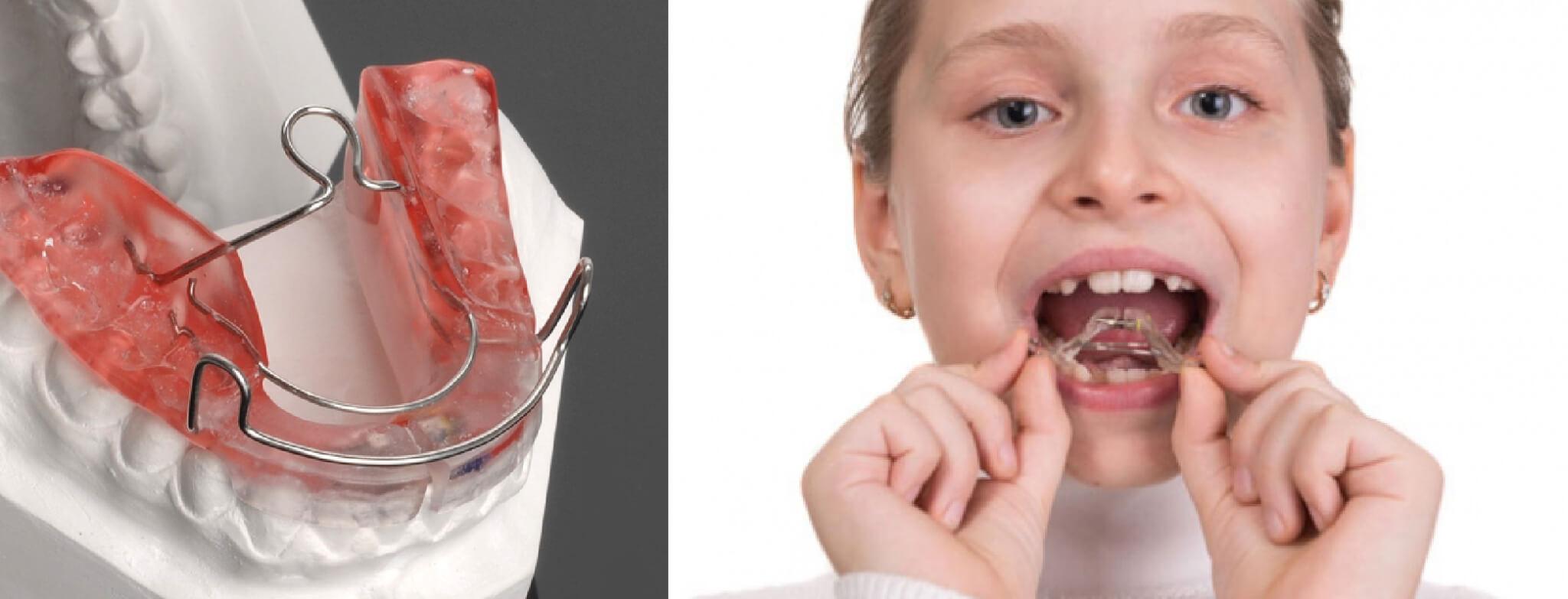 ortodoncia-funcional-50