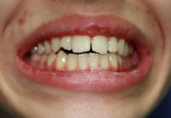 ortodoncia-vestibular-38