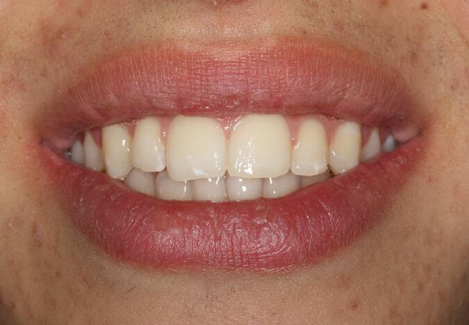 ortodoncia-vestibular-39