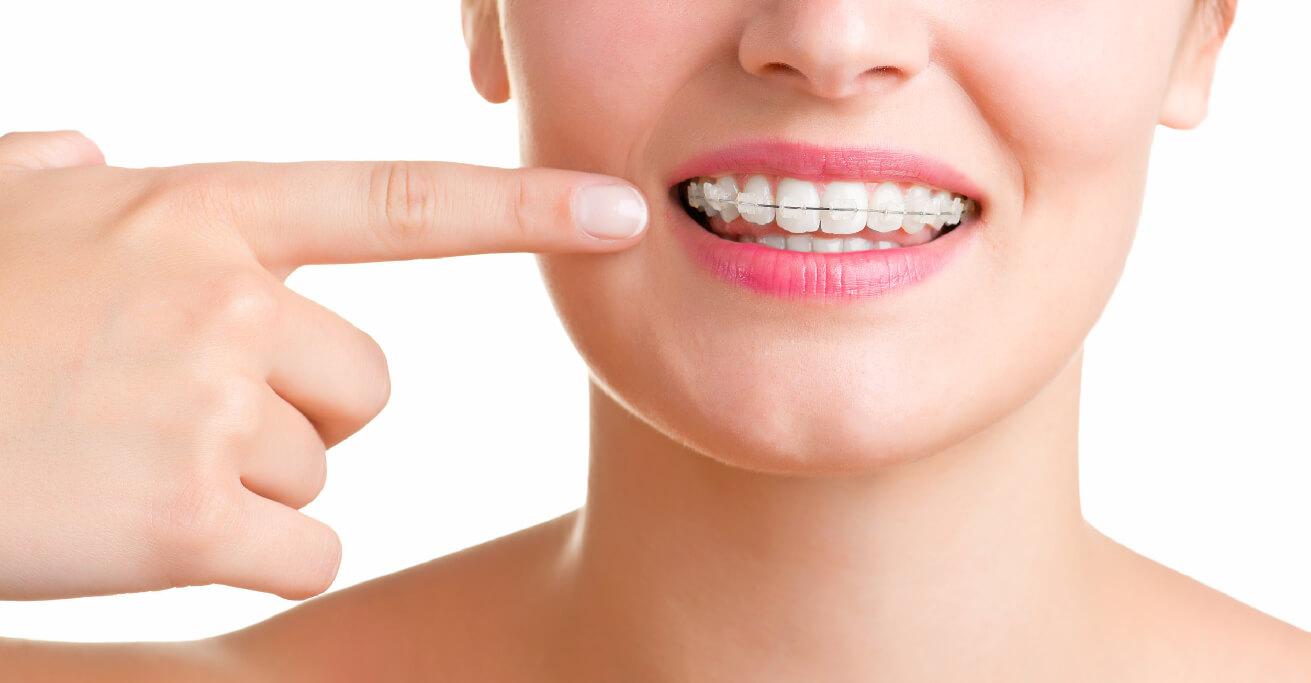 ortodoncia-vestibular-40
