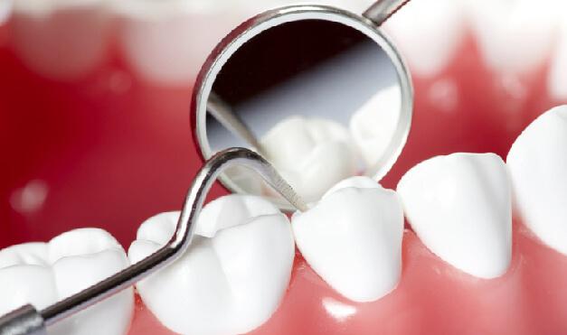 periodoncia-43