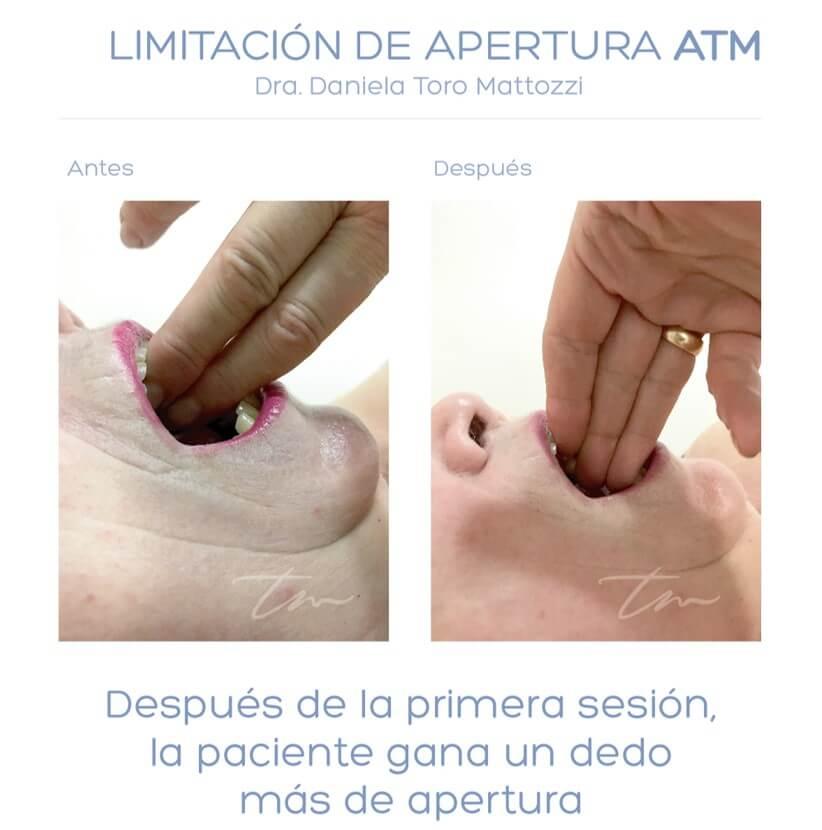 Diagnstico diferencial del dolor facial atpico