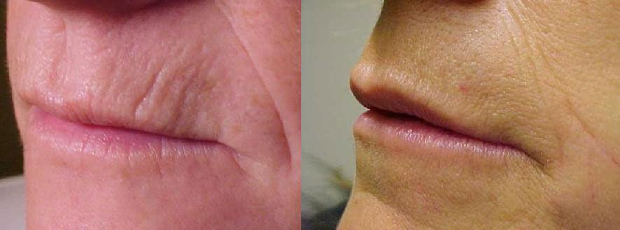 arrugasperibucales El Ácido Hialurónico: El perfecto aliado contra las arrugas del labio superior, el contorno labial y el surco nasogeniano