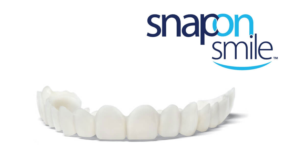 snapon Snap-On Smile: La opción fácil y asequible para conseguir un sonrisa 10 en tan solo dos citas