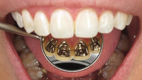 desventajas-ortodoncia-lingual 5 Razones para elegir Brackets Lingüales