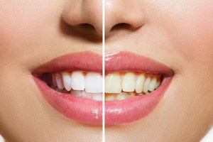 2-BLANQUEAMIENTO-DENTAL-b Blanqueamiento dental