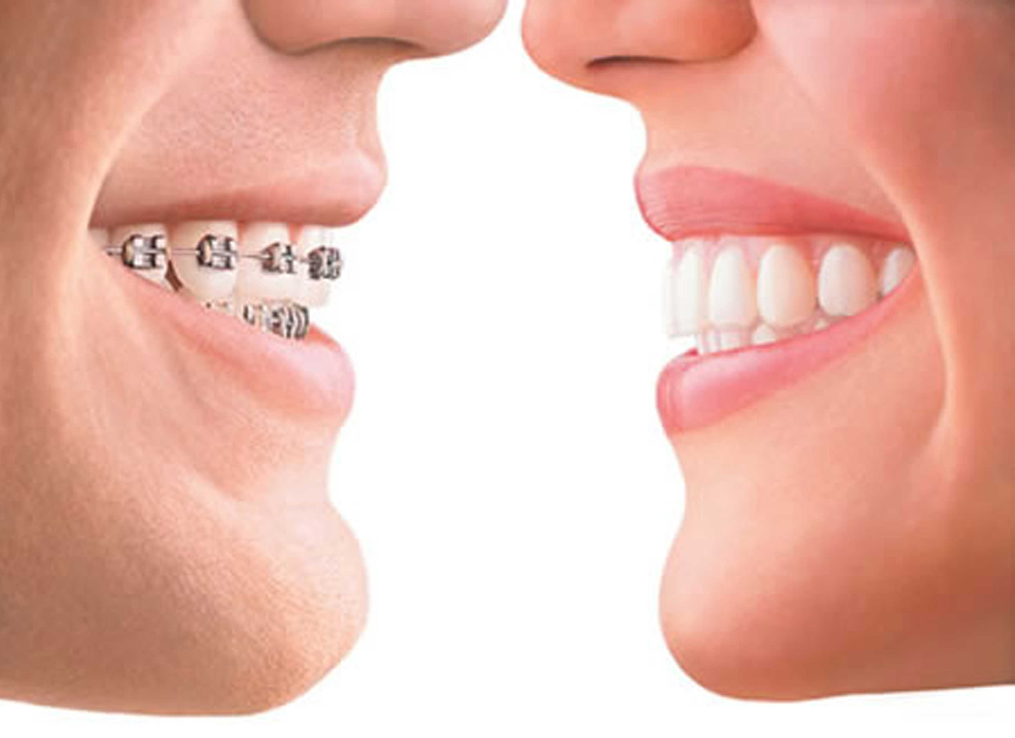 estetica-de-la-sonrisa-2 Estética de la sonrisa